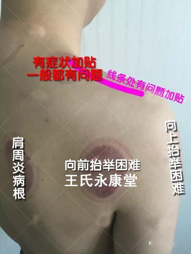 肩周炎2.jpg